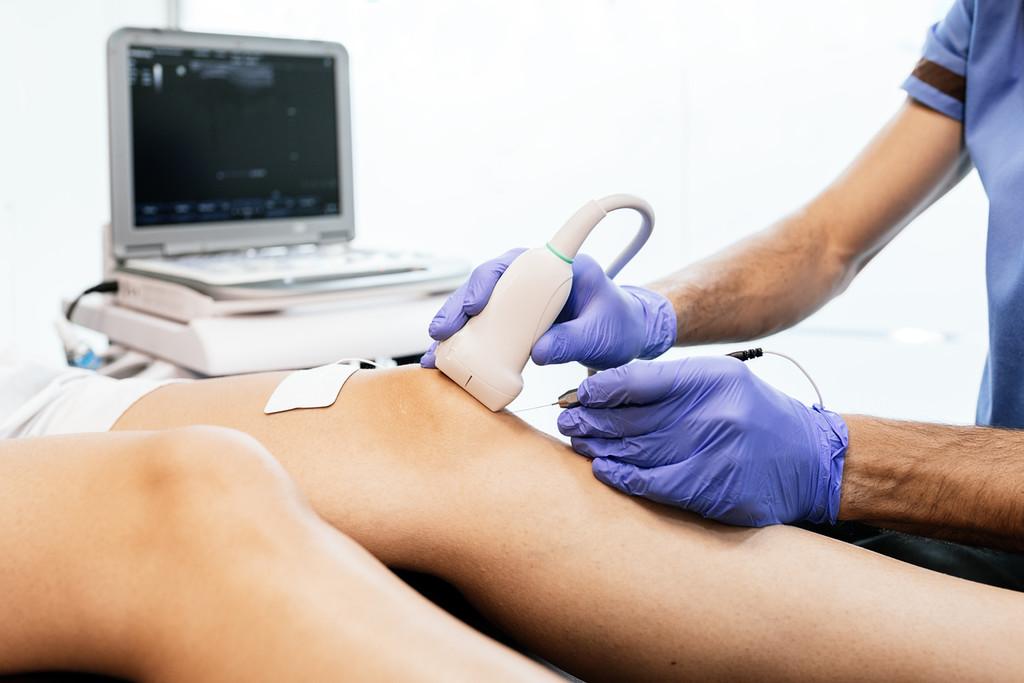 Agujas y corriente galvánica para tratar las lesiones: así funciona la técnica EPI