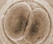 Opinan que el mantenimiento de embriones sobrantes merece una cuota anual
