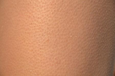 Skin 418266 1920