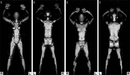 Escáneres corporales: ¿estarías dispuesto a pasar por ellos?