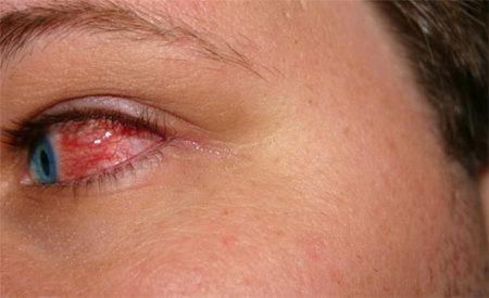 Puntos a tener en cuenta sobre los derrames oculares