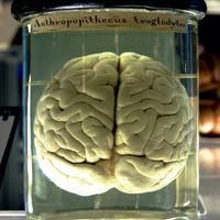 """Cerebro """"en conserva"""": estos científicos afirman haber conseguido mantener vivo un cerebro de cerdo desconectado del cuerpo"""