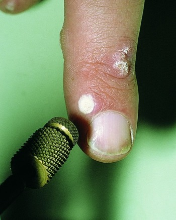 crioterapia verrugas