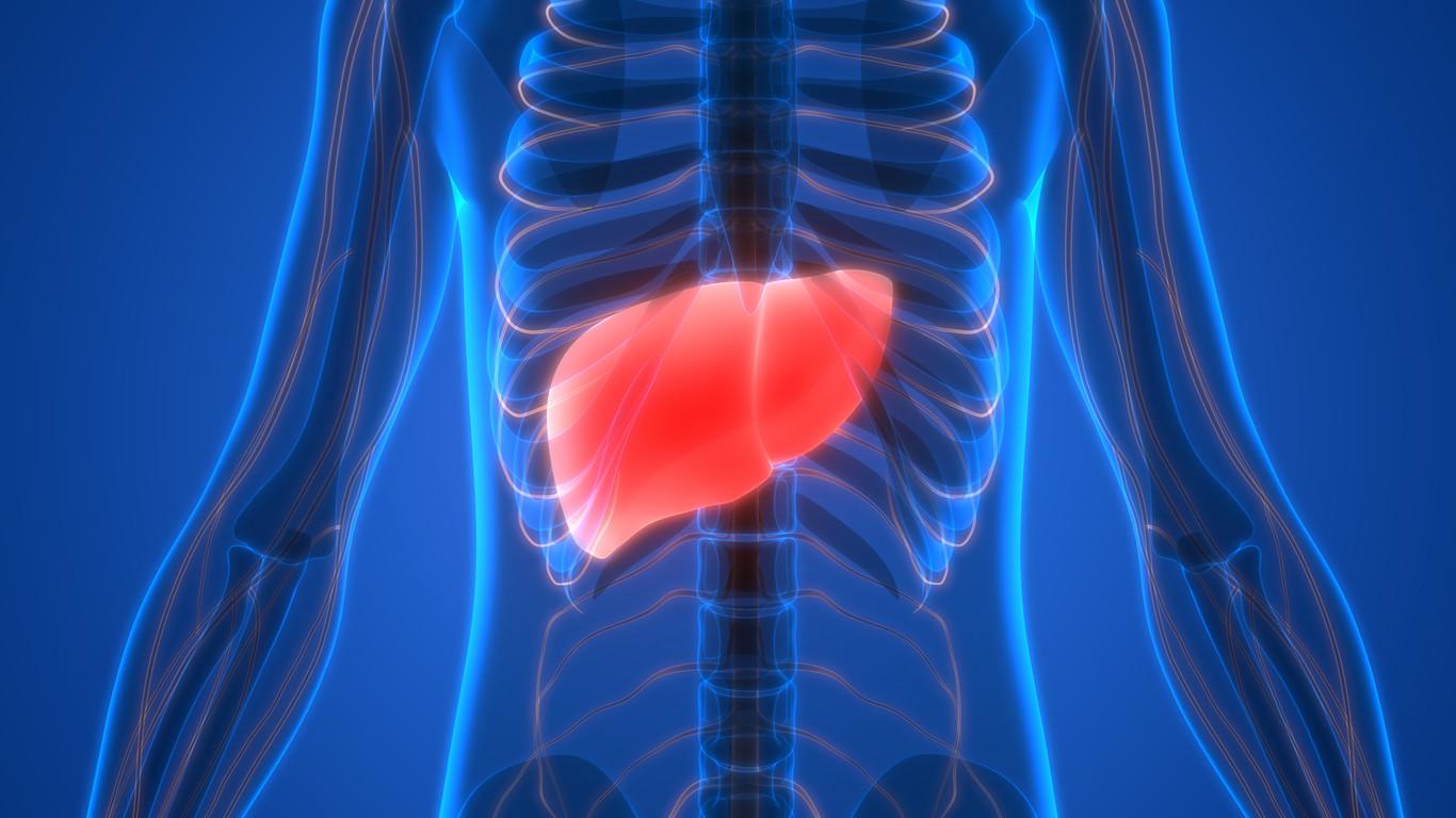 dieta equilibrada para tratar el hígado inflamado