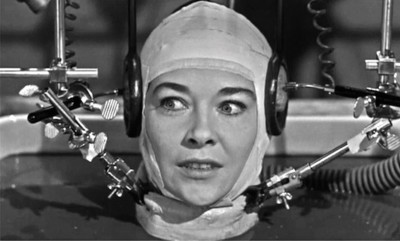 Un neurocientífico lo anuncia con rotundidad: El trasplante de cabeza llegaría en 2017