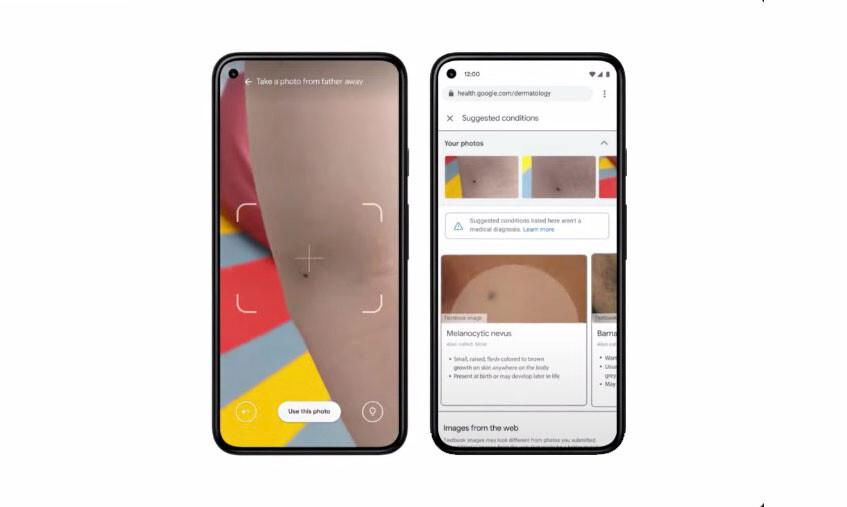Detectar problemas en la piel (incluso cáncer) usando la cámara del móvil: eso busca Google con uno de sus últimos proyectos