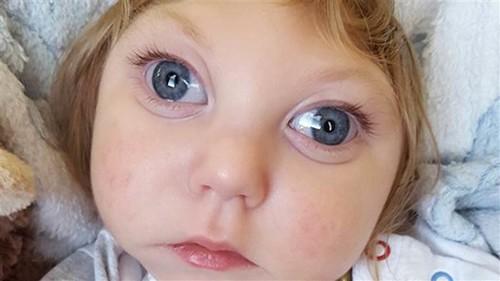La increíble historia de Jaxon, el bebé que cumplió dos años a pesar de faltarle la mayor parte de su cerebro
