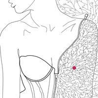 La teta lisa: el cáncer de mama contado con mucho sentido del humor