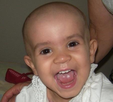 Pekelucas, una asociación de donación de cabello para que niños con cáncer puedan tener pelucas