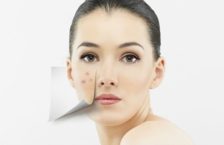 ¿Acné? ¿Hiperpigmentación? Nuevas soluciones para viejos problemas