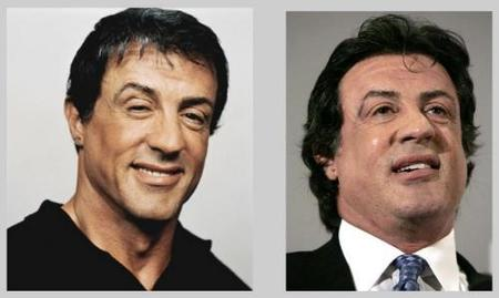 Silvester Stallone botox