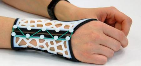 Los médicos podrán imprimir en 3D plantillas elásticas para personas con artritis