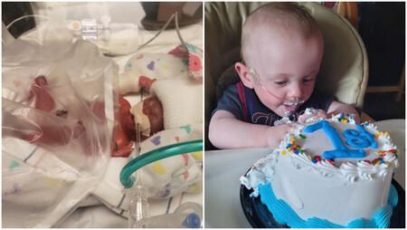 El bebé más prematuro del mundo según el Guinness de los Récords cumple su primer año: nació con 21 semanas y 340 gramos de peso