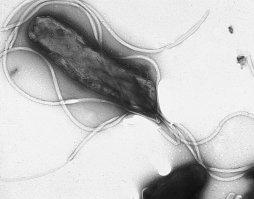 Orígenes de la bacteria causante de la úlcera de estómago