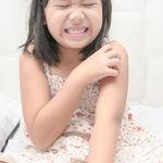 Dermatitis atópica: todas las claves para conocer mejor esta enfermedad de la piel