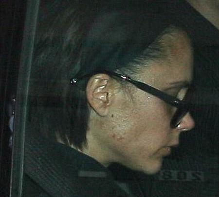 El secreto anti acné de Victoria Beckham: excremento de ruiseñor