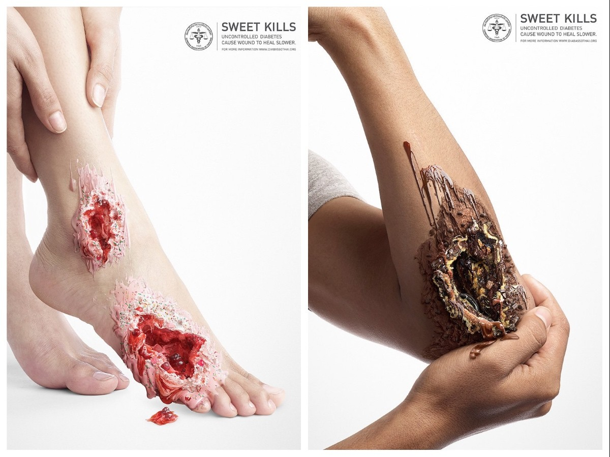 diabetes tipo 2 daño de órganos finales debido