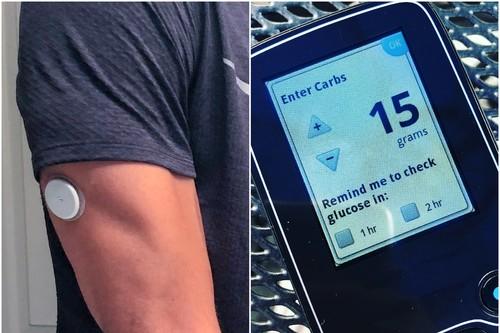 Medidores continuos de glucosa: así es como funcionan, y evaluamos si son útiles para aquellos que no padecen diabetes