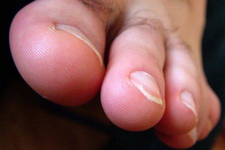 Consejos para prevenir uñas encarnadas
