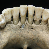 Los dientes de una monja acaban de confirmar la gran aportación de las mujeres a los manuscritos medievales
