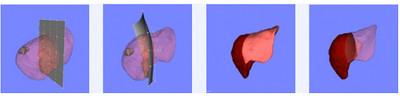 [Vídeo] Nuevo software que ayuda a operar tumores hepáticos