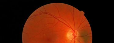 Google DeepMind: la lucha contra la ceguera y los datos de 1,6 millones de pacientes