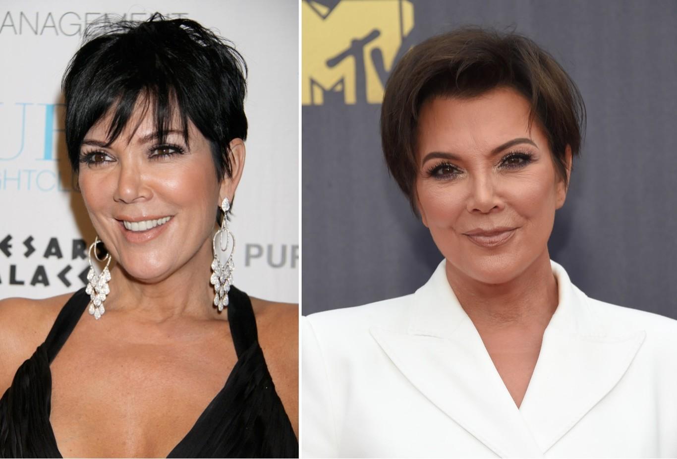 Kris Jenner en 2008 y en 2018