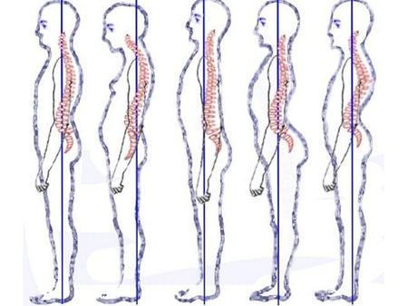 Postura 1