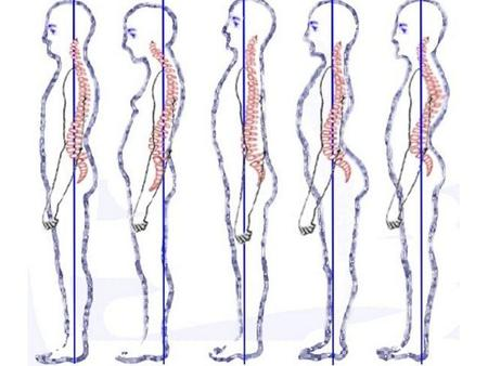 Ejercicios para mejorar tu postura corporal 0c11db3b1b0e