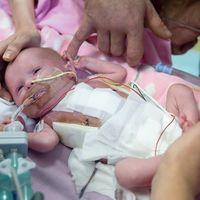 Una bebé que nació con el corazón fuera del cuerpo logra sobrevivir