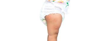Repelentes antimosquitos para bebés, ¿cuáles son adecuados?