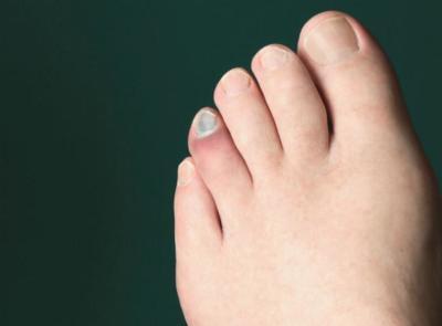 Uñas negras, un problema habitual en los corredores