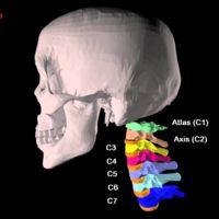 Columna cervical: repaso de anatomía ósea