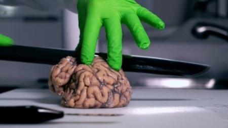 ¿Cuánto cuesta un cerebro?