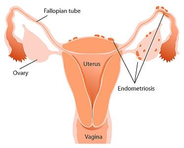 La endometriosis afecta al 15% de mujeres españolas en edad fértil