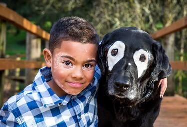 La preciosa historia de un niño con vitiligo y un perro unidos por la misma enfermedad