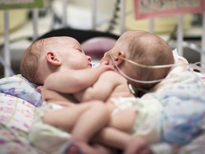 Separan con éxito a dos bebés siamesas de 13 meses unidas por el pecho y el abdomen