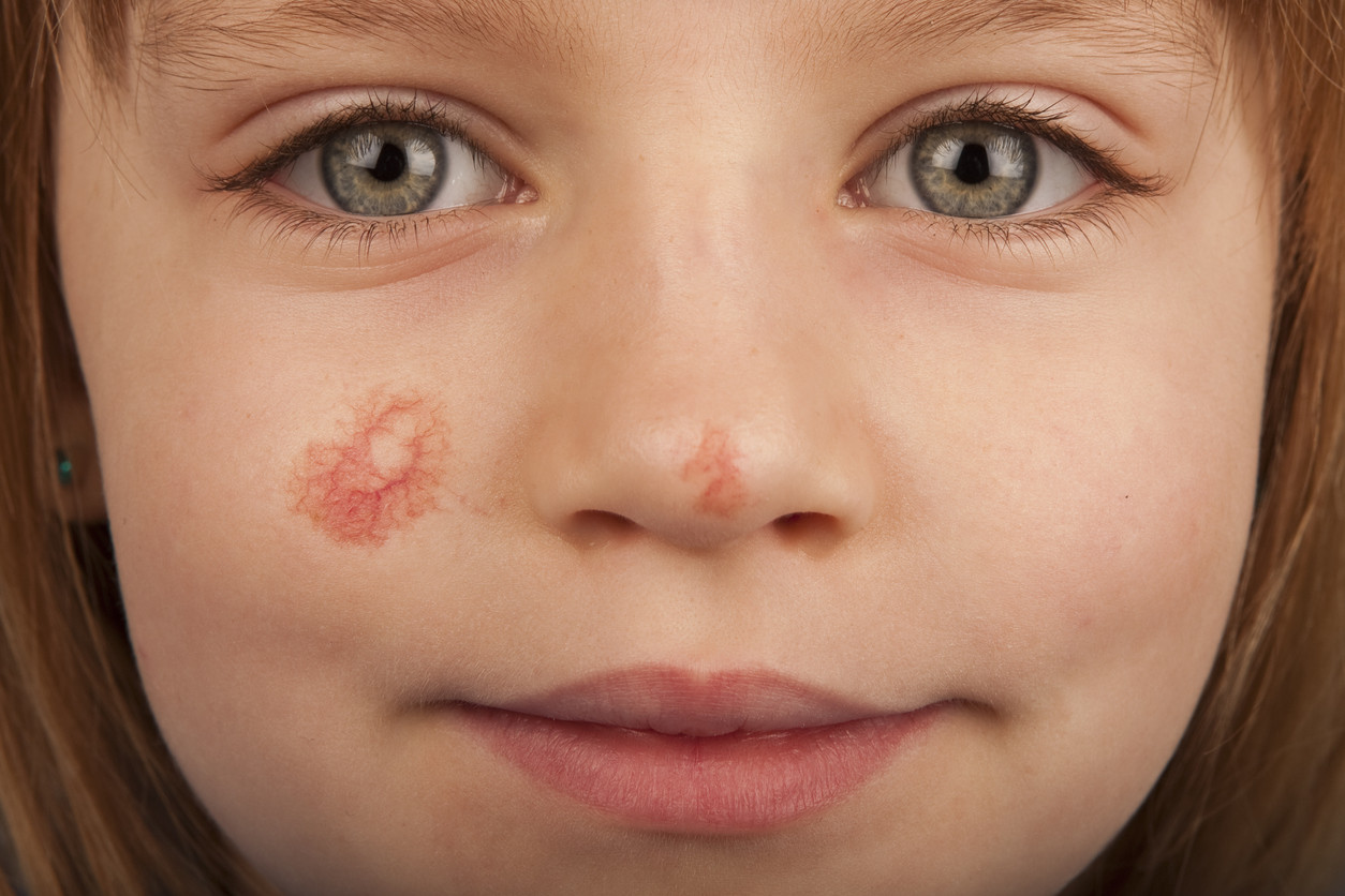 granitos rojos en la cara recien nacido