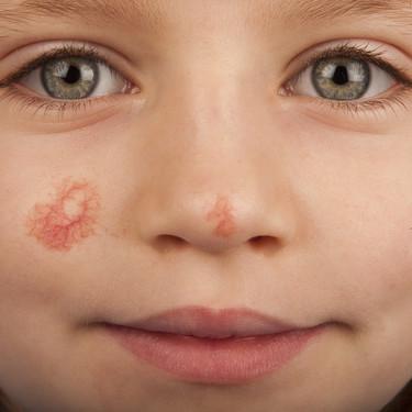 Angioma en niños: por qué se producen y cómo se trata este tipo de manchas en la piel