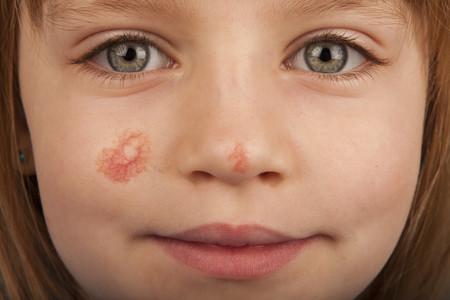 angiomas infantiles