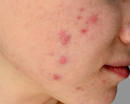 acne-piel