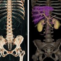 Nvidia quiere revolucionar los escaneos médicos gracias a su nueva IA de reconocimiento de órganos por un dólar