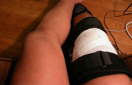 Como curar un tiron en el muslo posterior