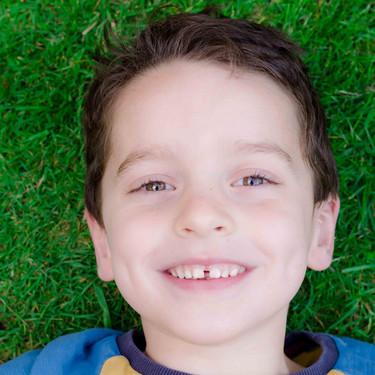 Frenillo labial superior e inferior: qué función desempeñan y cómo podrían afectar al correcto desarrollo bucodental del niño