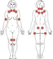 Fibromialgia, ¿para cuándo una cura?