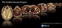 Proyecto Humano Visible: la primera referencia visual detallada del interior humano está basado en un criminal