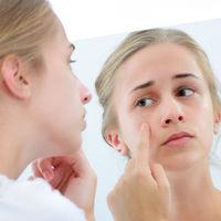 Mi hijo adolescente tiene acné y le afecta psicológicamente: qué hacer para ayudarle