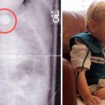Para que veas lo peligrosas que son las pilas de botón: este bebé estuvo a punto de morir y tiene graves secuelas
