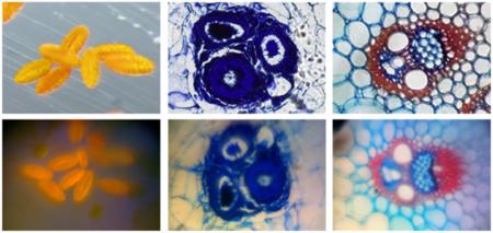 Comparativa de imágenes entre un microscopio comercial y las imágenes tomadas con el iPhone