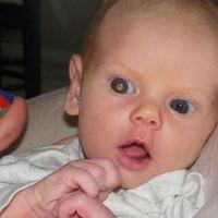 Una madre detecta un cáncer en el ojo a su bebé gracias a las fotos con flash del móvil